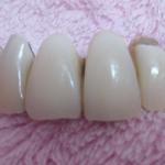 差し歯の値段、前歯は保険とセラミックどっちが良い?