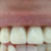 芸能人も使う目立たない部分入れ歯や入れ歯は値段も安くて安定剤も必要ない。