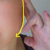 小顔になる方法、短期で効果の出る方法とジェルや美容液はどれが良い?