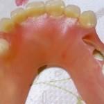 ノンクラスプデンチャーの欠点や寿命と入れ歯を作る時の注意点