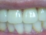 入れ歯の費用とノンクラスプデンチャーとスマイルデンチャーの違いや比較